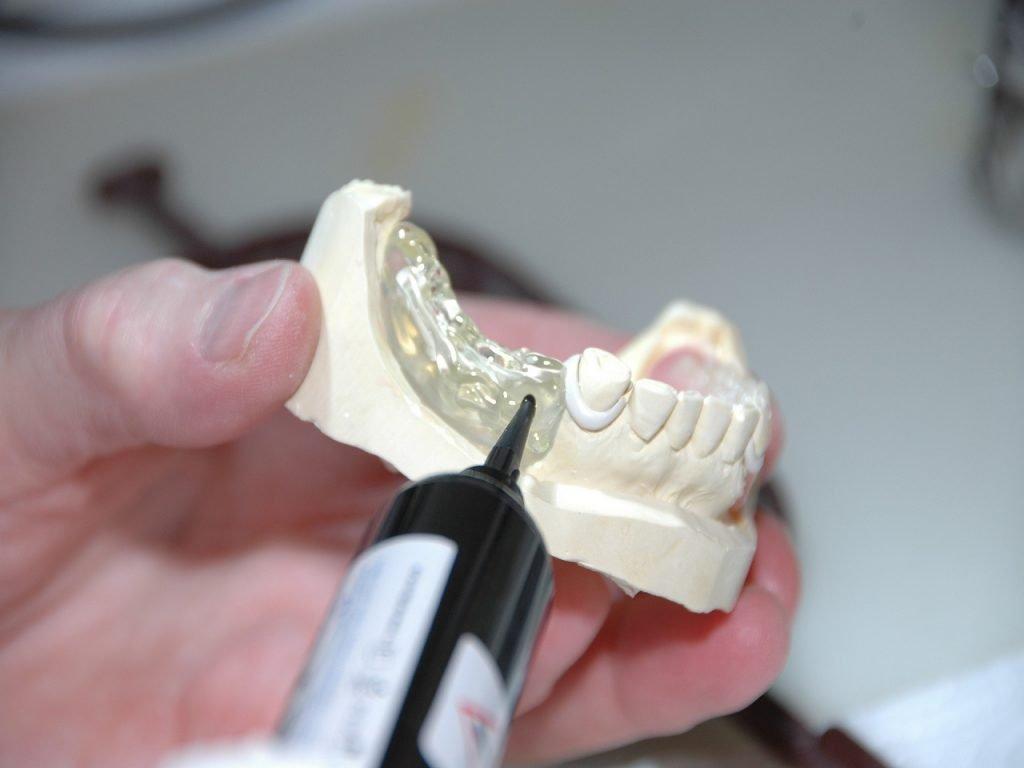 Implantate als Zahnersatz